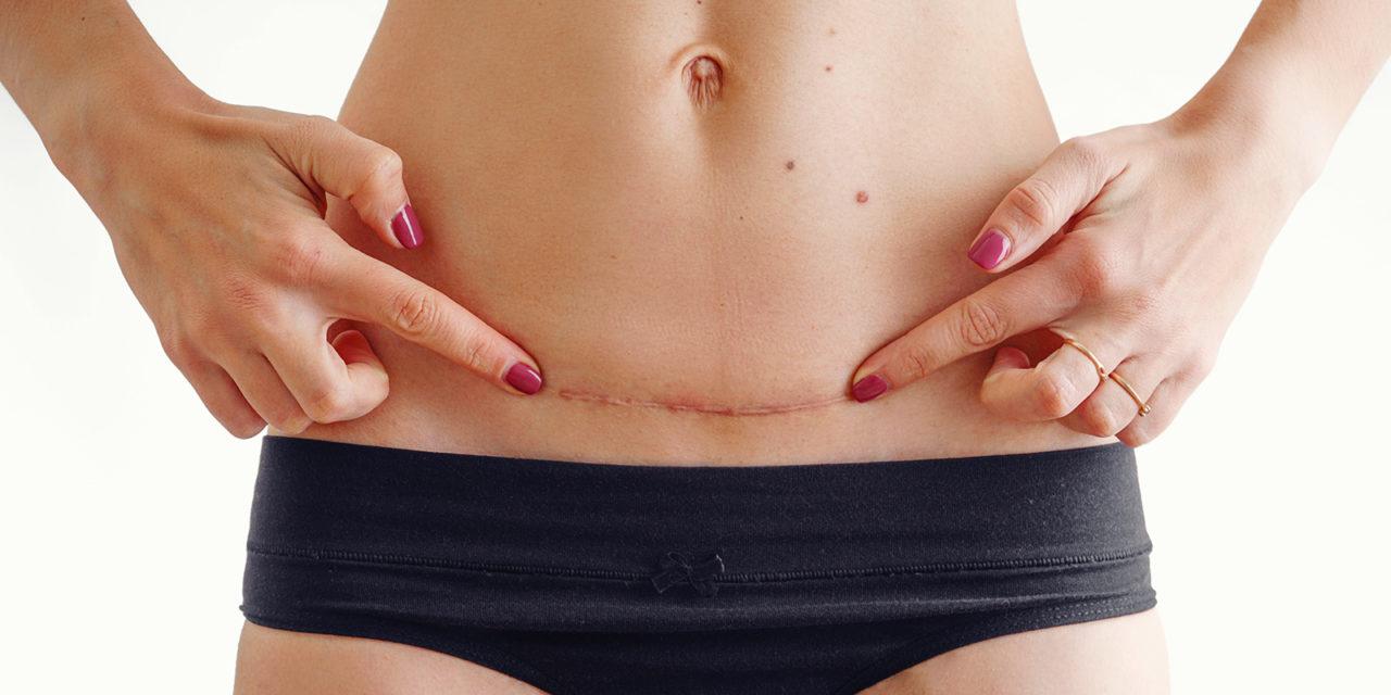 Cesarskie cięcie – wskazania, poród i okres połogu